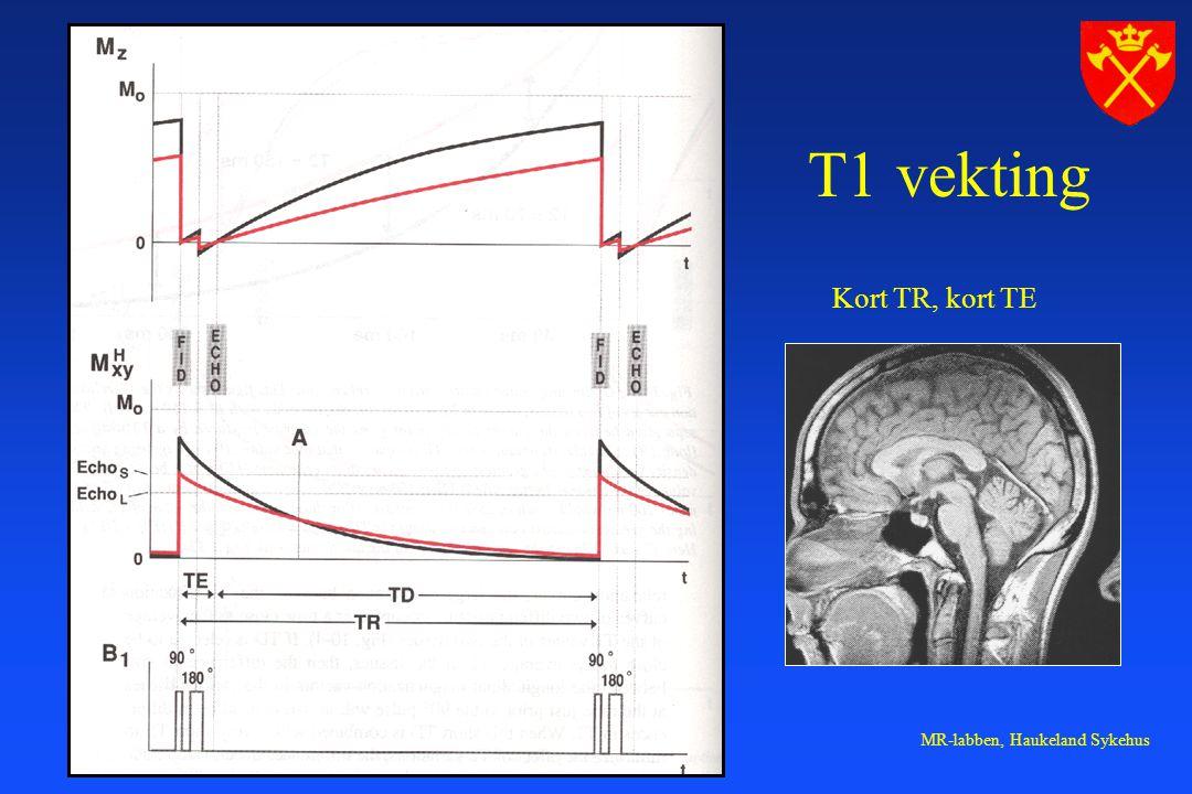 MR-labben, Haukeland Sykehus T1 vekting Kort TR, kort TE