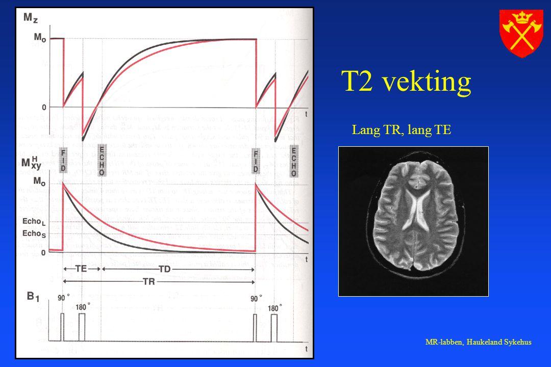 MR-labben, Haukeland Sykehus T2 vekting Lang TR, lang TE
