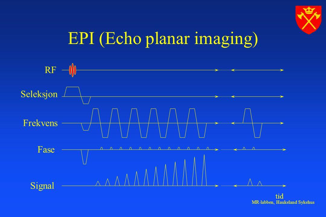 MR-labben, Haukeland Sykehus EPI (Echo planar imaging) RF Seleksjon Frekvens Fase Signal tid