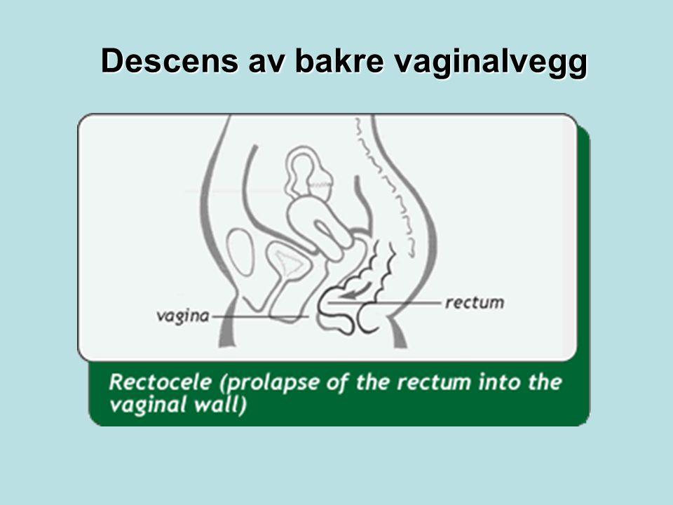 Descens av bakre vaginalvegg