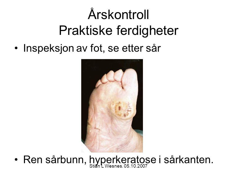 Stian L Wesnes. 05.10.2007 Årskontroll Praktiske ferdigheter Inspeksjon av fot, se etter sår Ren sårbunn, hyperkeratose i sårkanten.