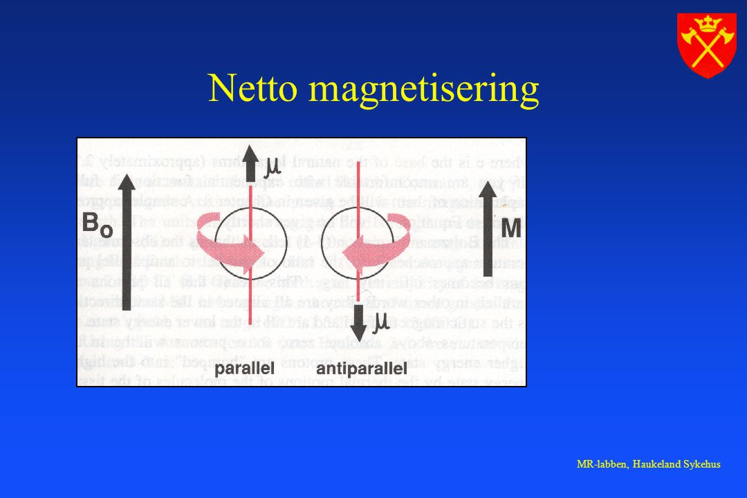 MR-labben, Haukeland Sykehus Netto magnetisering