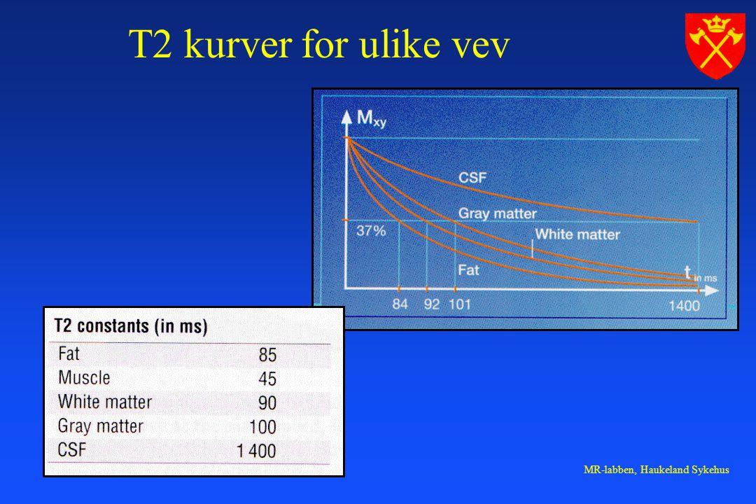 MR-labben, Haukeland Sykehus T2 kurver for ulike vev