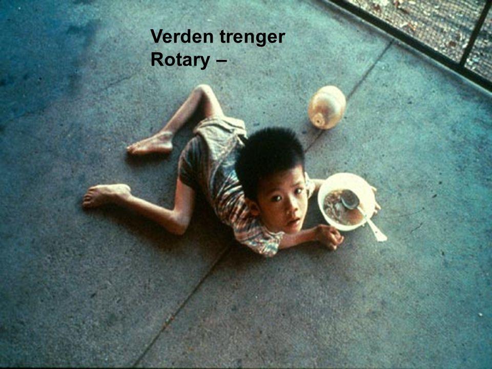 Polioaffected child Verden trenger Rotary –