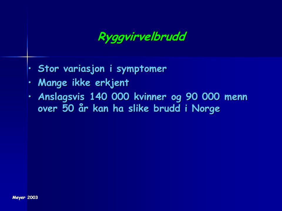 Ryggvirvelbrudd Stor variasjon i symptomerStor variasjon i symptomer Mange ikke erkjentMange ikke erkjent Anslagsvis 140 000 kvinner og 90 000 menn ov