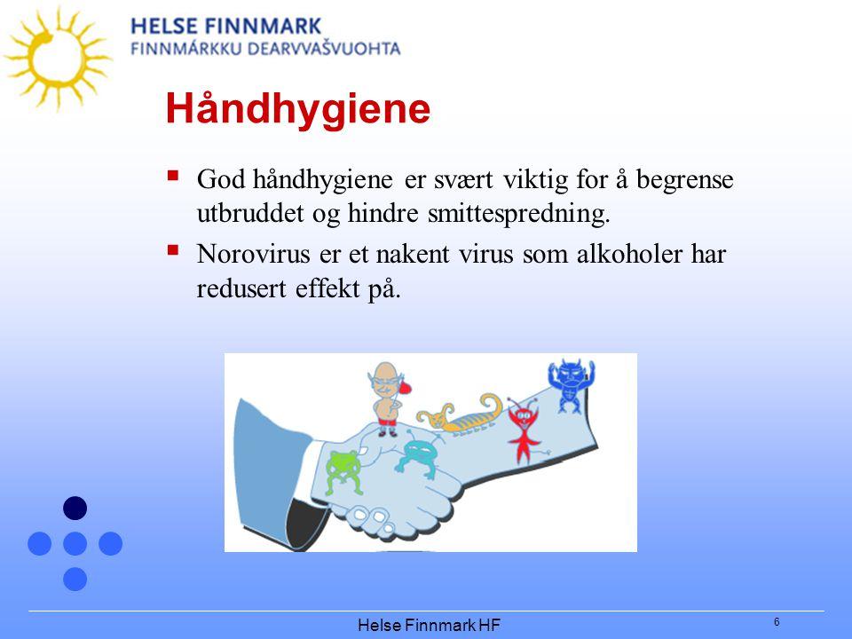Helse Finnmark HF 6 Håndhygiene  God håndhygiene er svært viktig for å begrense utbruddet og hindre smittespredning.  Norovirus er et nakent virus s