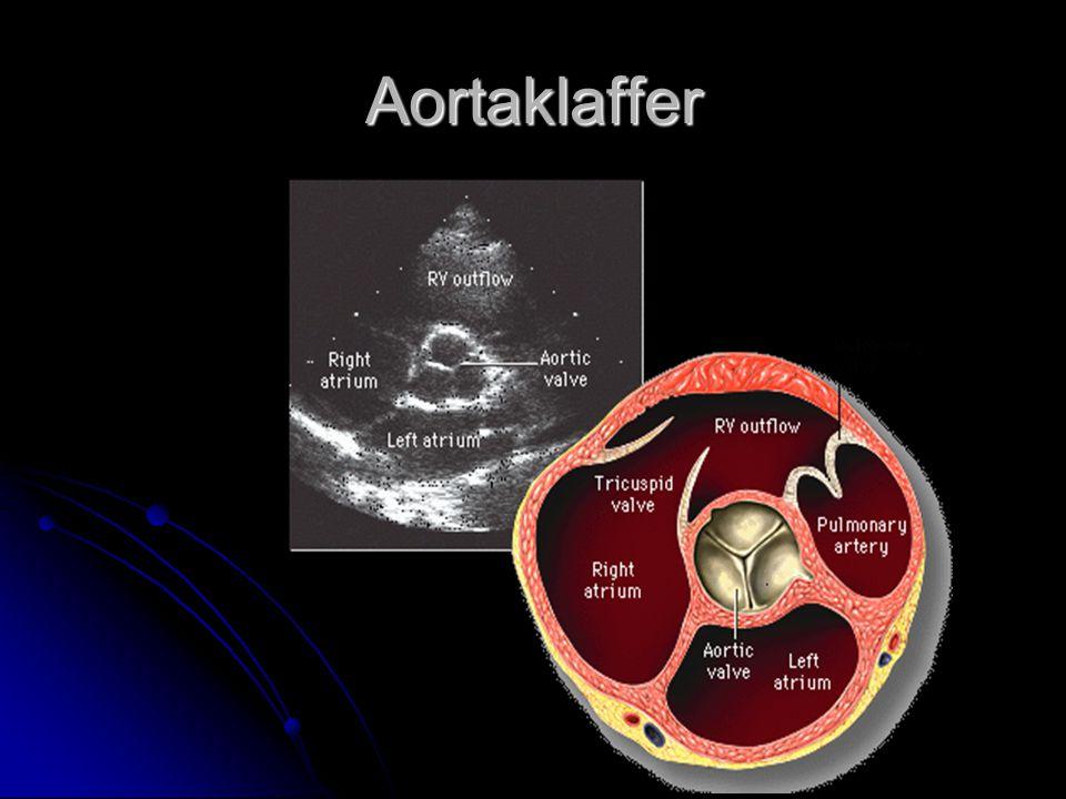 Aortaklaffer