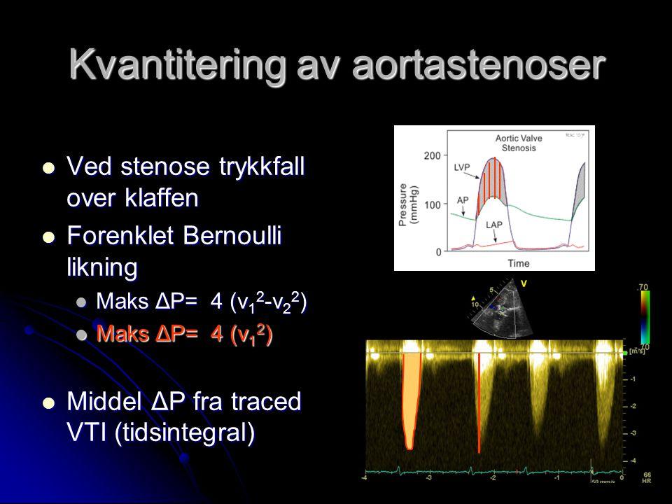 Kvantitering av aortastenoser Ved stenose trykkfall over klaffen Ved stenose trykkfall over klaffen Forenklet Bernoulli likning Forenklet Bernoulli li