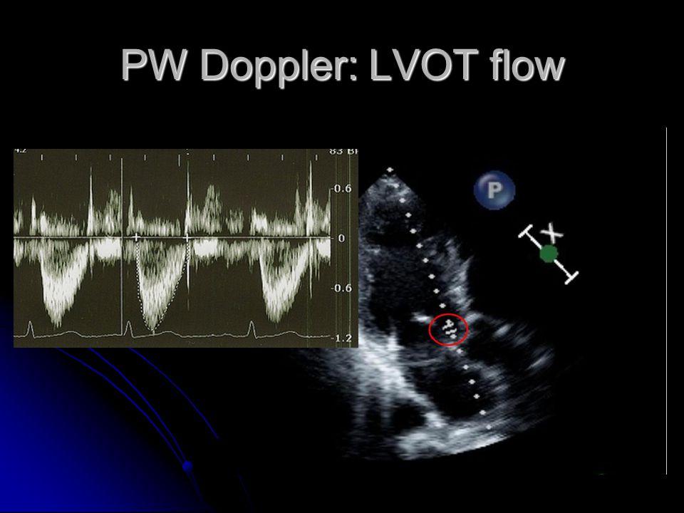 PW Doppler: LVOT flow