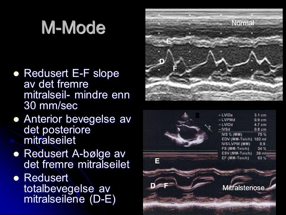 M-Mode Redusert E-F slope av det fremre mitralseil- mindre enn 30 mm/sec Redusert E-F slope av det fremre mitralseil- mindre enn 30 mm/sec Anterior be