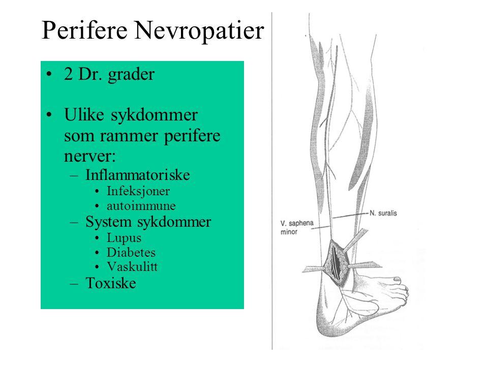Perifere Nevropatier 2 Dr. grader Ulike sykdommer som rammer perifere nerver: –Inflammatoriske Infeksjoner autoimmune –System sykdommer Lupus Diabetes