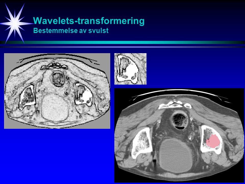 32 Wavelets-transformering Bestemmelse av svulst