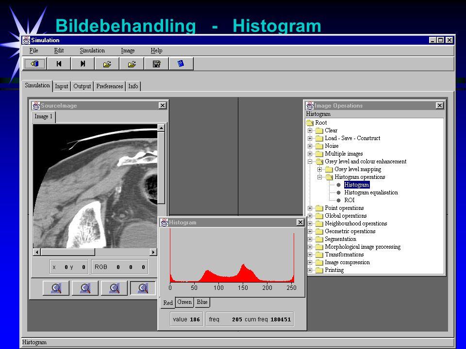 12 Bildebehandling - Histogram