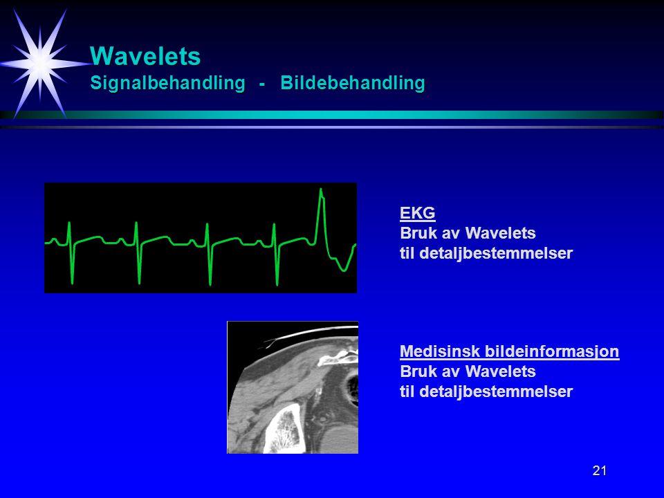 21 Wavelets Signalbehandling - Bildebehandling EKG Bruk av Wavelets til detaljbestemmelser Medisinsk bildeinformasjon Bruk av Wavelets til detaljbestemmelser