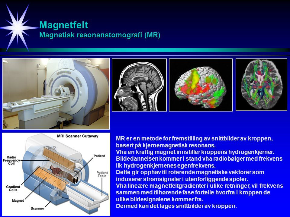 Magnetfelt Magnetisk resonanstomografi (MR) MR er en metode for fremstilling av snittbilder av kroppen, basert på kjernemagnetisk resonans. Vha en kra