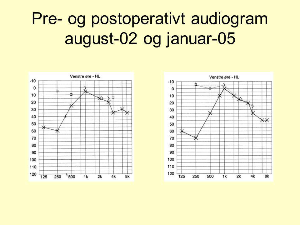Pre- og postoperativt audiogram august-02 og januar-05