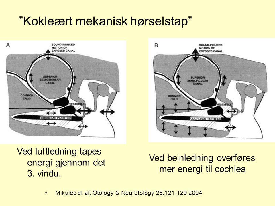 Mikulec et al: Otology & Neurotology 25:121-129 2004 Ved luftledning tapes energi gjennom det 3. vindu. Ved beinledning overføres mer energi til cochl