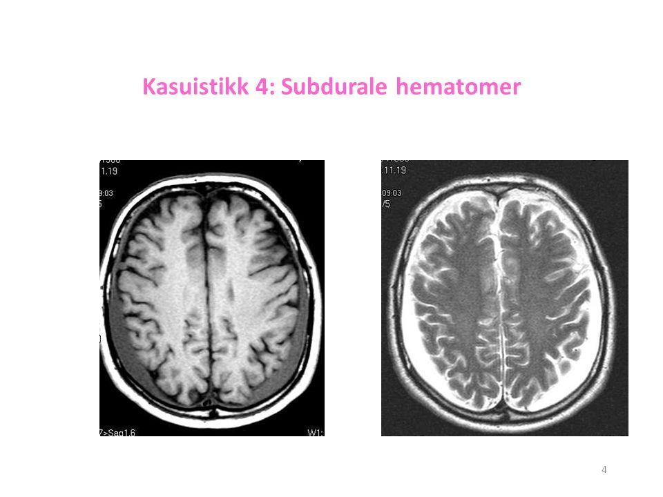 4 Kasuistikk 4: Subdurale hematomer