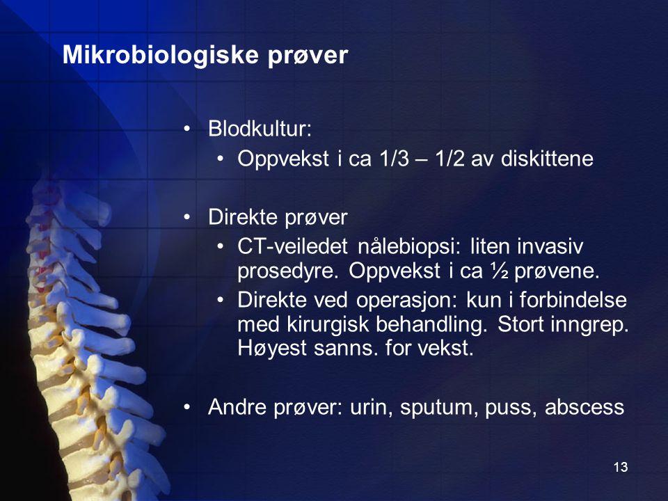 13 Blodkultur: Oppvekst i ca 1/3 – 1/2 av diskittene Direkte prøver CT-veiledet nålebiopsi: liten invasiv prosedyre.