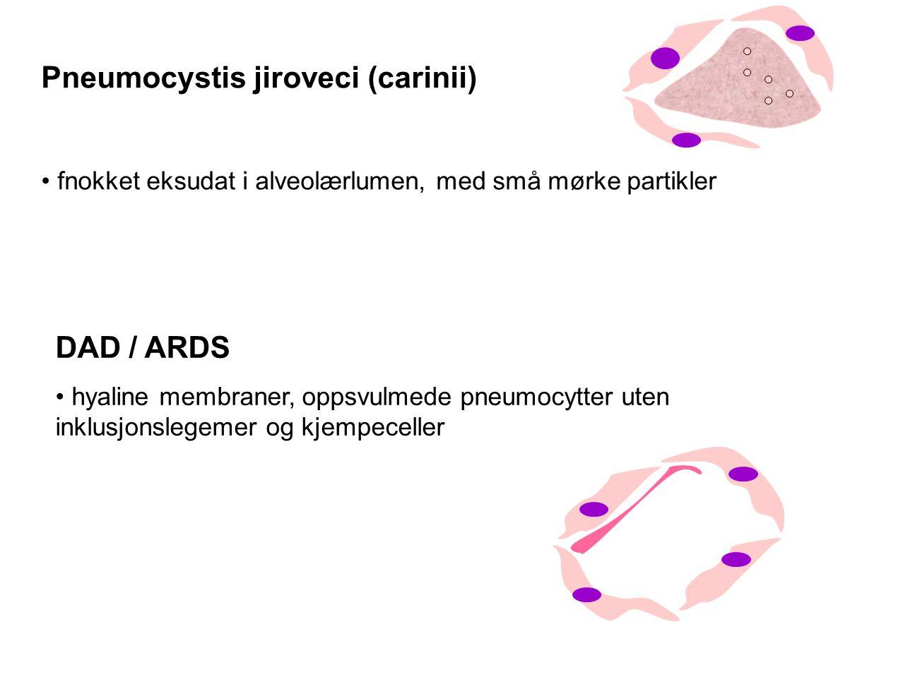 Pneumocystis jiroveci (carinii) fnokket eksudat i alveolærlumen, med små mørke partikler DAD / ARDS hyaline membraner, oppsvulmede pneumocytter uten inklusjonslegemer og kjempeceller