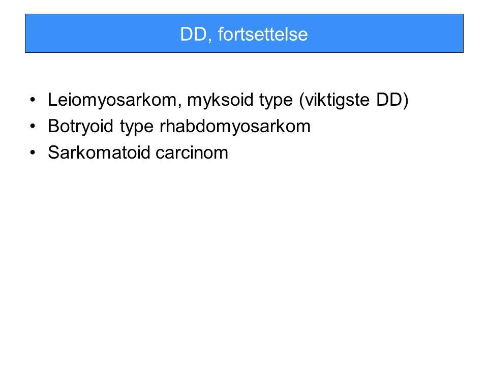 DD, fortsettelse Leiomyosarkom, myksoid type (viktigste DD) Botryoid type rhabdomyosarkom Sarkomatoid carcinom