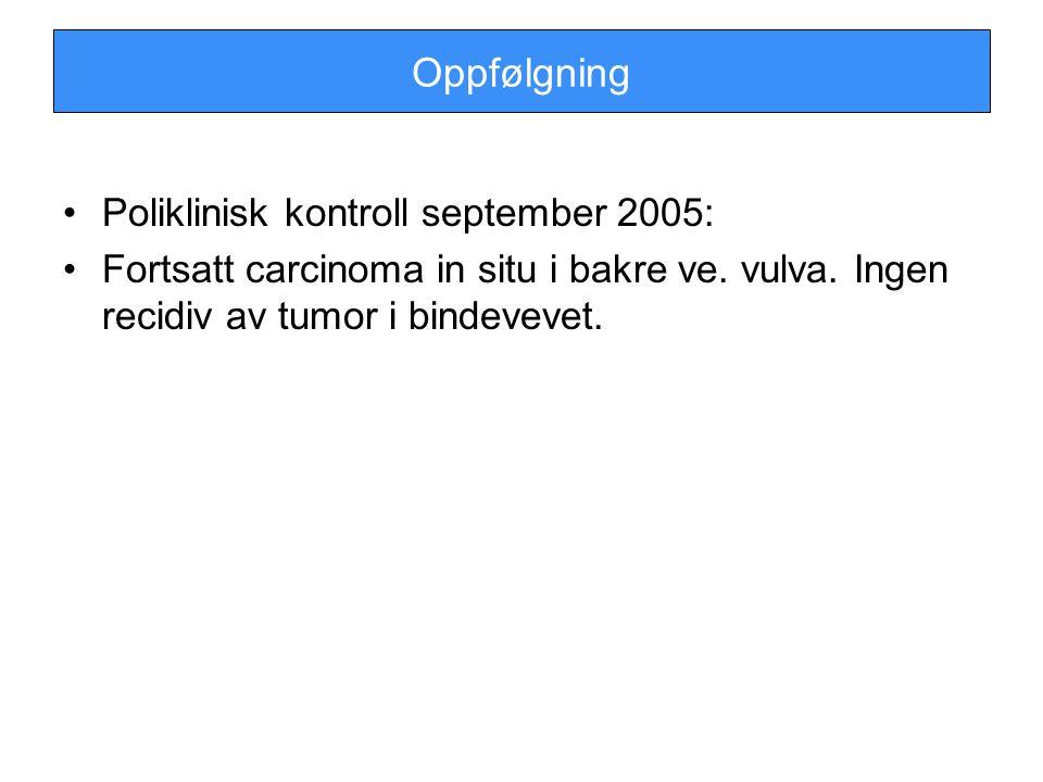 Oppfølgning Poliklinisk kontroll september 2005: Fortsatt carcinoma in situ i bakre ve. vulva. Ingen recidiv av tumor i bindevevet.