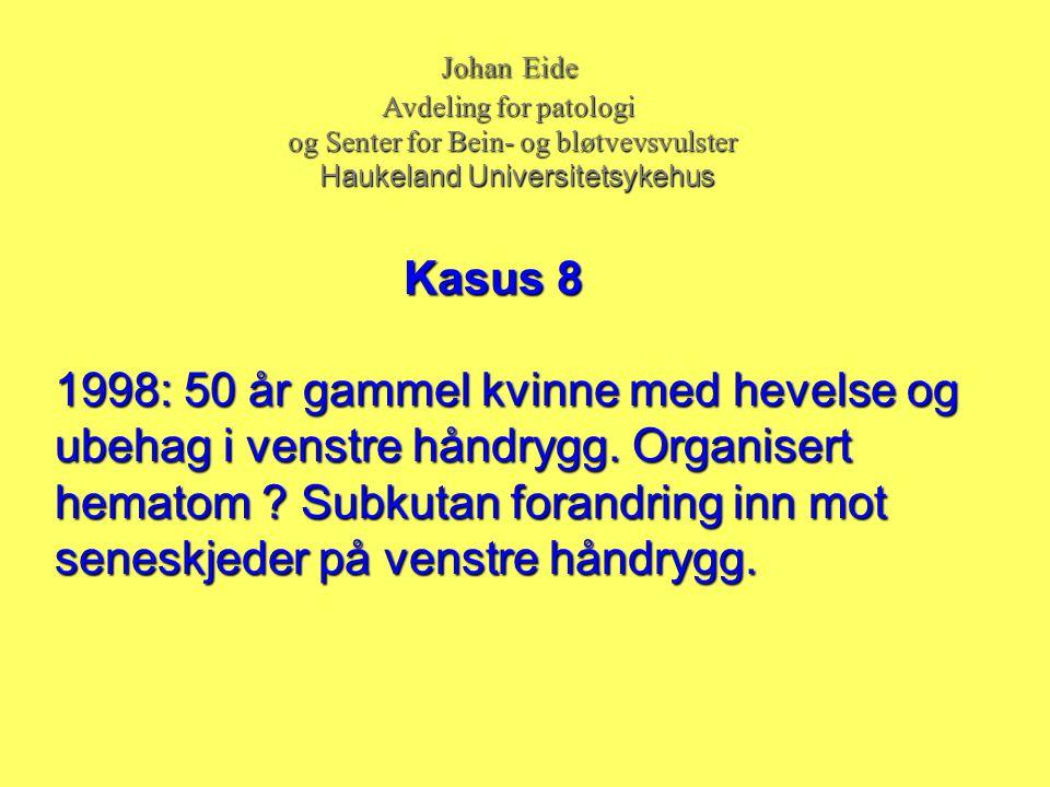 Johan Eide Johan Eide Avdeling for patologi Avdeling for patologi og Senter for Bein- og bløtvevsvulster og Senter for Bein- og bløtvevsvulster Haukel