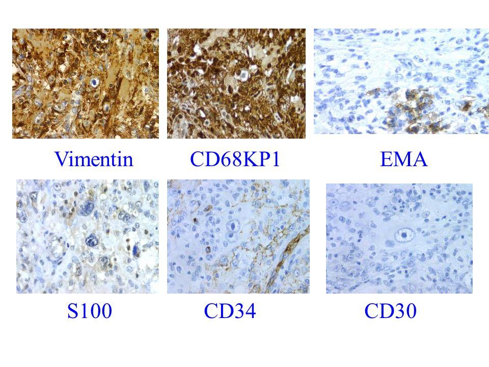 Vimentin CD68KP1 EMA S100 CD34 CD30
