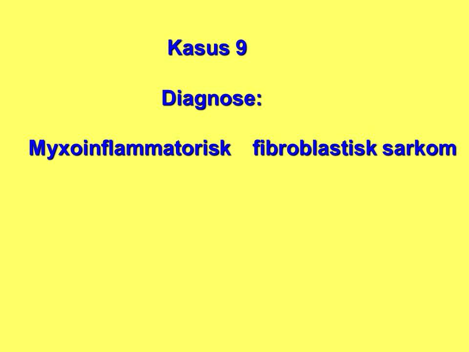 Kasus 9 Diagnose: Diagnose: Myxoinflammatorisk fibroblastisk sarkom