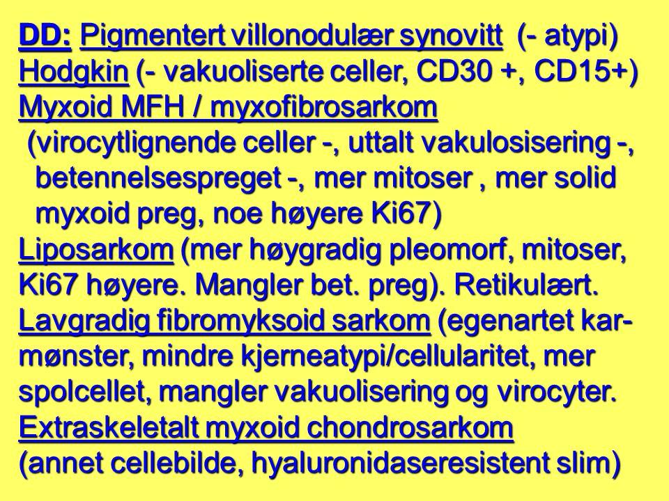 DD: Pigmentert villonodulær synovitt (- atypi) Hodgkin (- vakuoliserte celler, CD30 +, CD15+) Myxoid MFH / myxofibrosarkom (virocytlignende celler -,