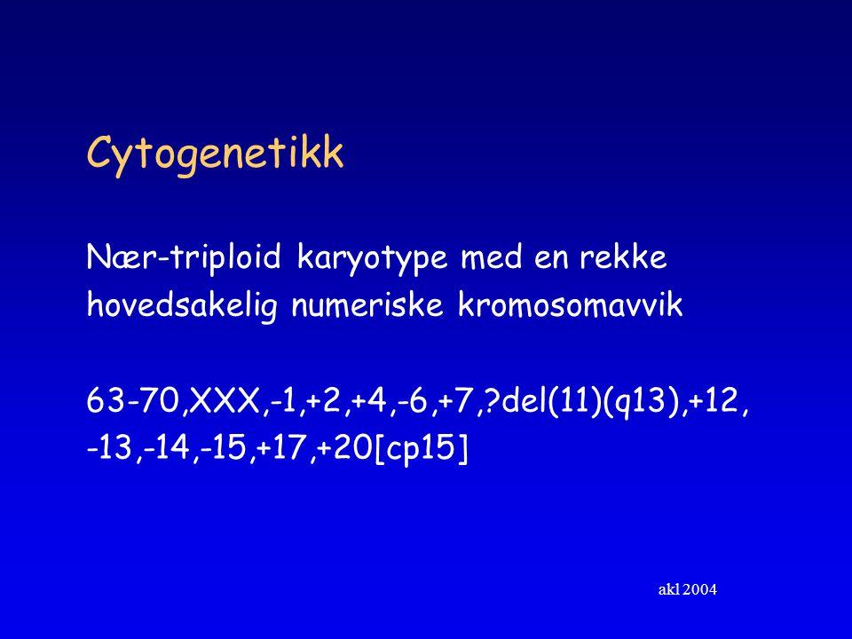 akl 2004 Cytogenetikk Nær-triploid karyotype med en rekke hovedsakelig numeriske kromosomavvik 63-70,XXX,-1,+2,+4,-6,+7,?del(11)(q13),+12, -13,-14,-15,+17,+20[cp15]