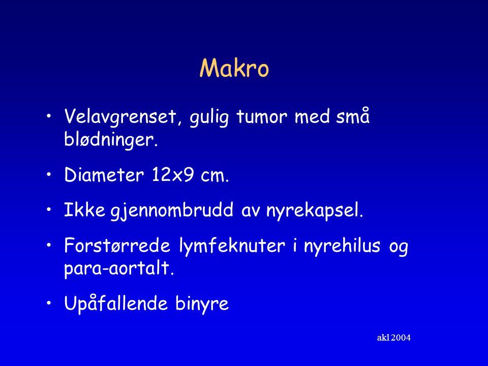 akl 2004 Oppfølgning Frisk, ingen metastaser eller lokalt recidiv 1 1/2 år etter behandling