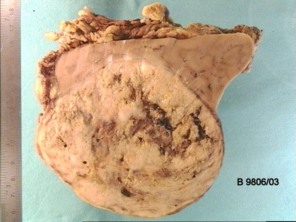 akl 2004 Nyrecellecarcinom av tubulær, mucinøs og spolcellet type