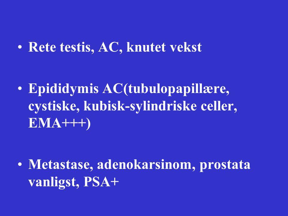 Rete testis, AC, knutet vekst Epididymis AC(tubulopapillære, cystiske, kubisk-sylindriske celler, EMA+++) Metastase, adenokarsinom, prostata vanligst, PSA+