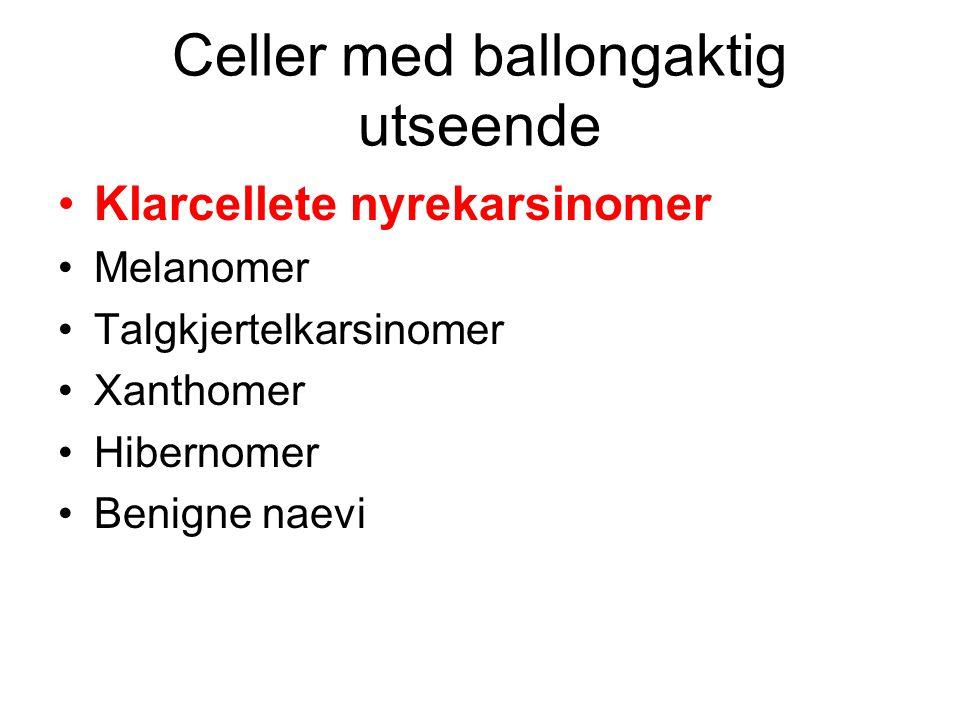 Celler med ballongaktig utseende Klarcellete nyrekarsinomer Melanomer Talgkjertelkarsinomer Xanthomer Hibernomer Benigne naevi