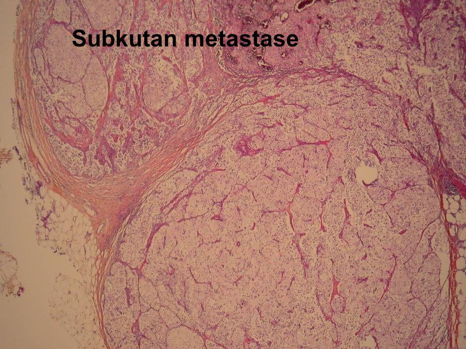 Subkutan metastase