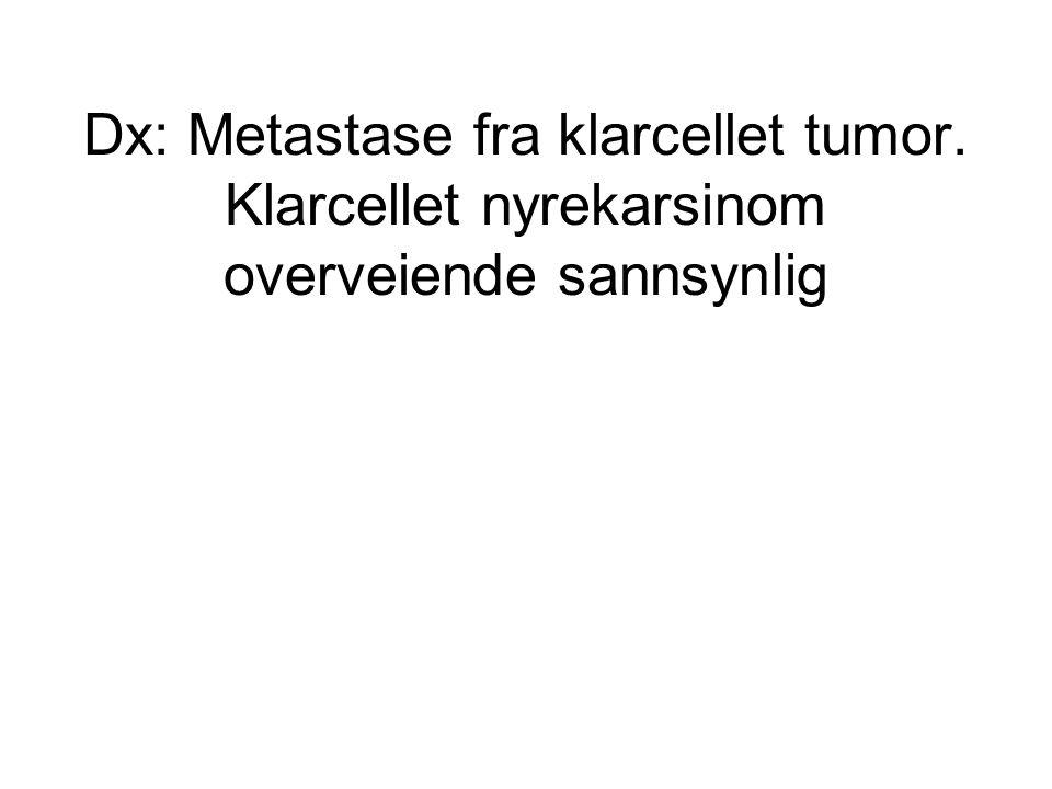Dx: Metastase fra klarcellet tumor. Klarcellet nyrekarsinom overveiende sannsynlig