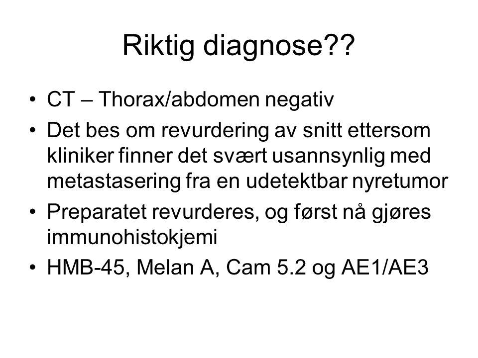 Riktig diagnose?? CT – Thorax/abdomen negativ Det bes om revurdering av snitt ettersom kliniker finner det svært usannsynlig med metastasering fra en