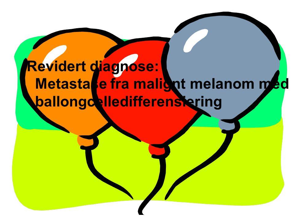 Revidert diagnose: Metastase fra malignt melanom med ballongcelledifferensiering
