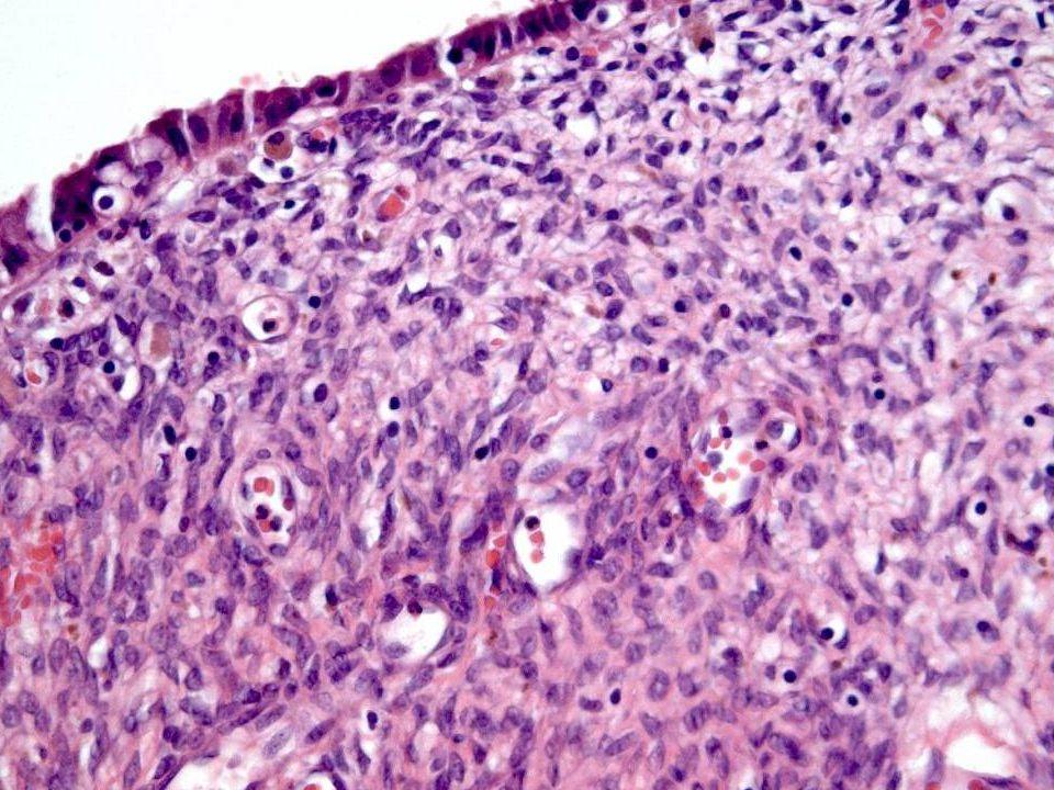 I en mindre studie er det vist økt p53 ekspresjon, på linje med cancer, i atypisk endometriose (6/6) sammenlignet med endometriose (2/17.) (Eur J Obstet Gynecol Reprod Biol.