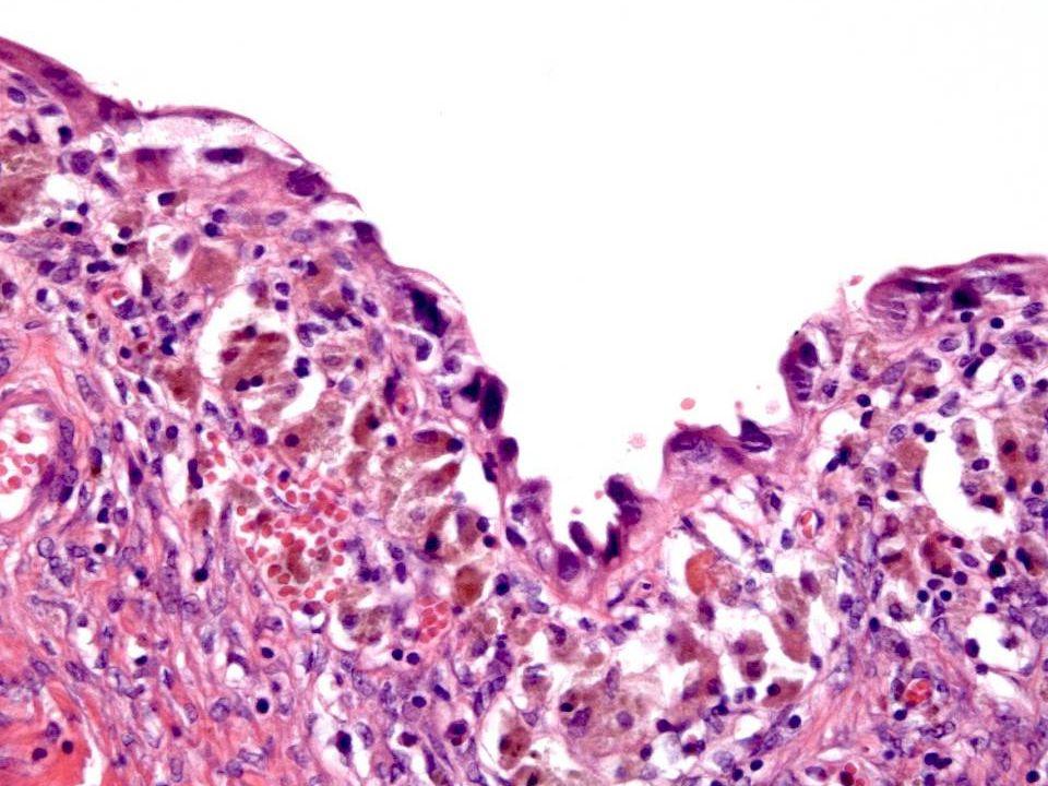 Differensialdiagnoser Endosalpingiose: Epitel med tubelignende utseende.