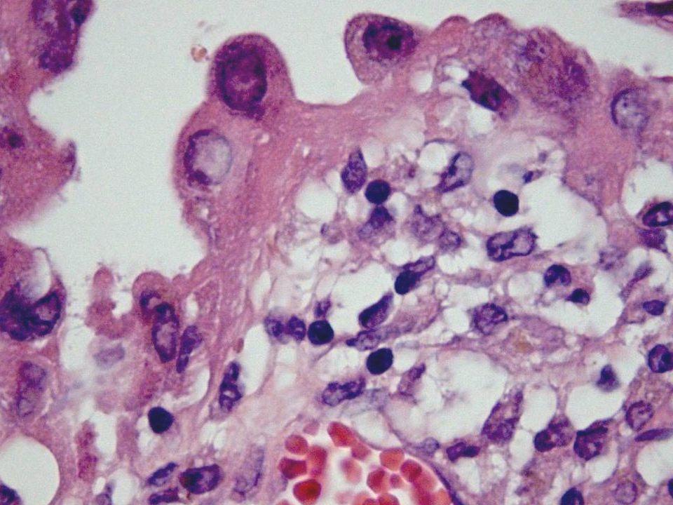 Mikro Ovarium med cyste med degenerert blod i veggen og hemosiderinmakrofager.