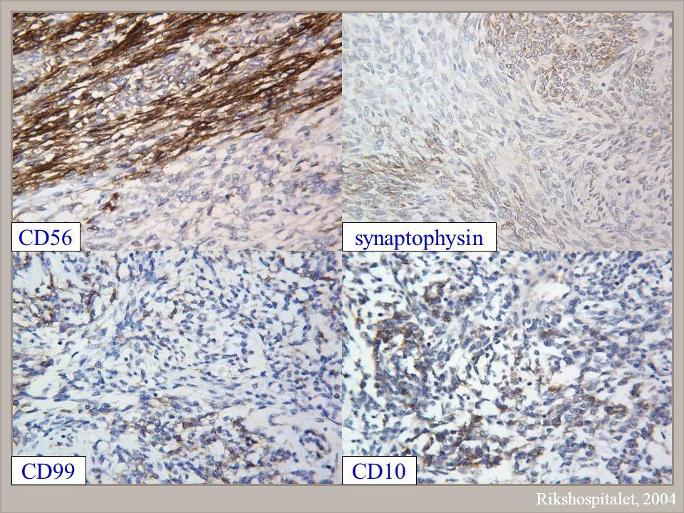 Rikshospitalet, 2004 synaptophysinCD56 CD99CD10