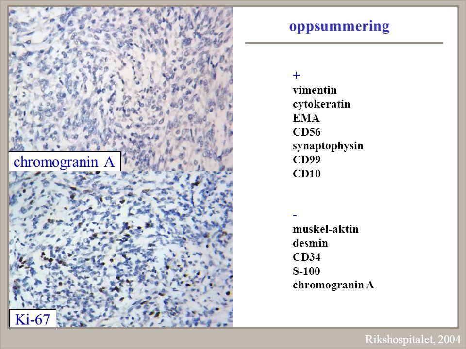 Rikshospitalet, 2004 chromogranin A Ki-67 oppsummering + vimentin cytokeratin EMA CD56 synaptophysin CD99 CD10 - muskel-aktin desmin CD34 S-100 chromo
