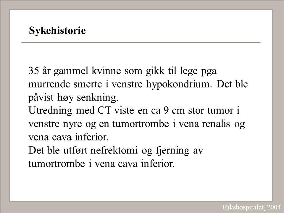 Sykehistorie Rikshospitalet, 2004 35 år gammel kvinne som gikk til lege pga murrende smerte i venstre hypokondrium. Det ble påvist høy senkning. Utred
