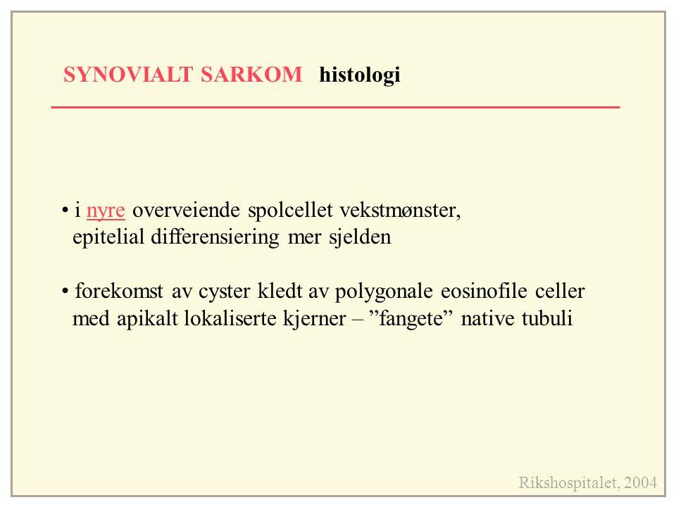 SYNOVIALT SARKOM histologi Rikshospitalet, 2004 i nyre overveiende spolcellet vekstmønster, epitelial differensiering mer sjelden forekomst av cyster