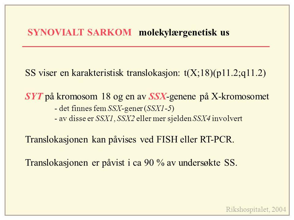 SYNOVIALT SARKOM molekylærgenetisk us Rikshospitalet, 2004 SS viser en karakteristisk translokasjon: t(X;18)(p11.2;q11.2) SYT på kromosom 18 og en av