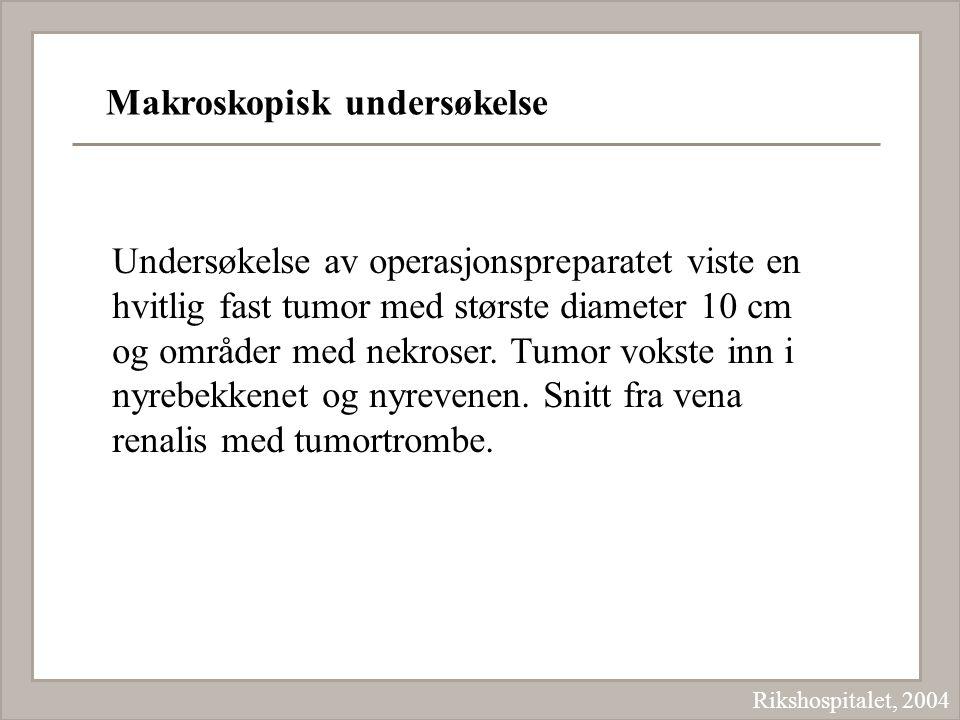 Makroskopisk undersøkelse Rikshospitalet, 2004 Undersøkelse av operasjonspreparatet viste en hvitlig fast tumor med største diameter 10 cm og områder
