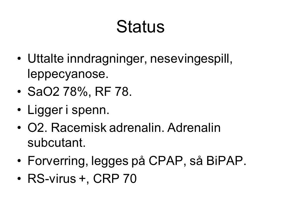 Status Uttalte inndragninger, nesevingespill, leppecyanose. SaO2 78%, RF 78. Ligger i spenn. O2. Racemisk adrenalin. Adrenalin subcutant. Forverring,