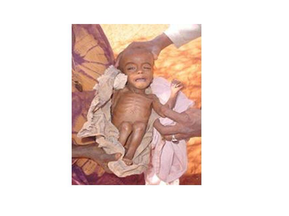 Gutt 1 mnd Foreldre fra Pakistan FV omkring 3.5 kg, frisk hittil i livet.
